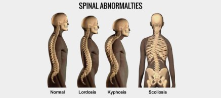 The-Bottom-Line-on-Lordosis-and-Scoliosis-tablet 2.jpg